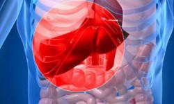 Кровотечения при циррозе печени