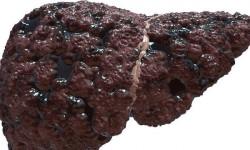 Признаки и симптомы цирроза печени у мужчин и женщин