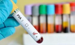 Исследование уровня простатспецифического антигена в крови