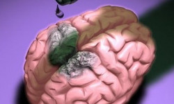 Можно ли пить алкоголь после сотрясения мозга?