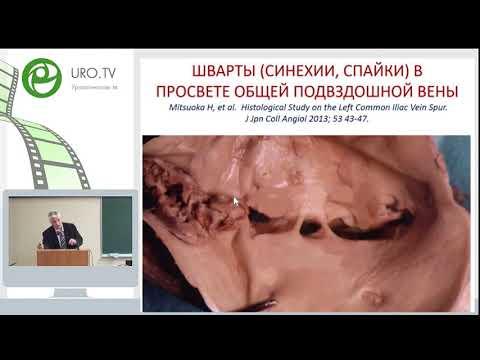 Двустороннее варикоцеле и варикозная болезнь вен органов малого таза.