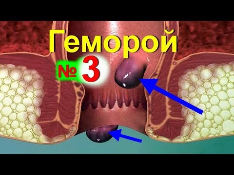 Геморрой ! Лечение геморроя народными средствами - №3| Домашнее лечение при геморрое/ ed black
